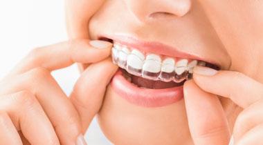 藤田歯科医院のホワイトニング